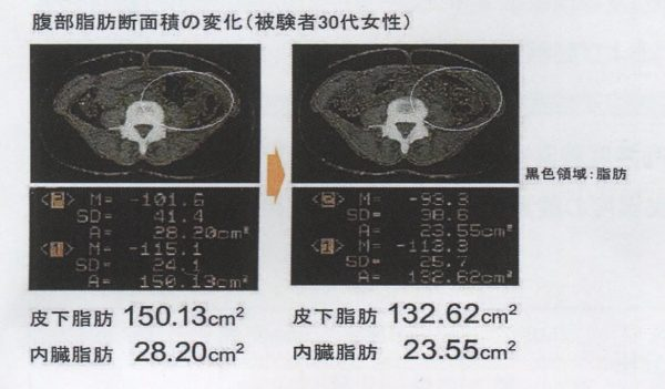 高気圧酸素下における症例(左:運動前、右:運動後)